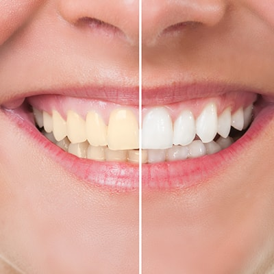 A person who underwent teeth whitening which is part of our dental services in Fishers, IN.