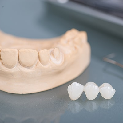 A dental bridge