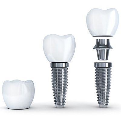 Dental Services in Fishers IN - The anatomy of a dental implant