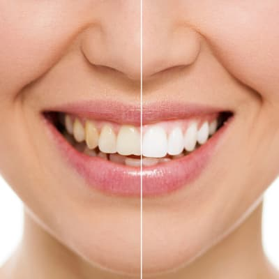 Before and after picture of teeth whitening and cosmetic dentistry in Fishers, IN